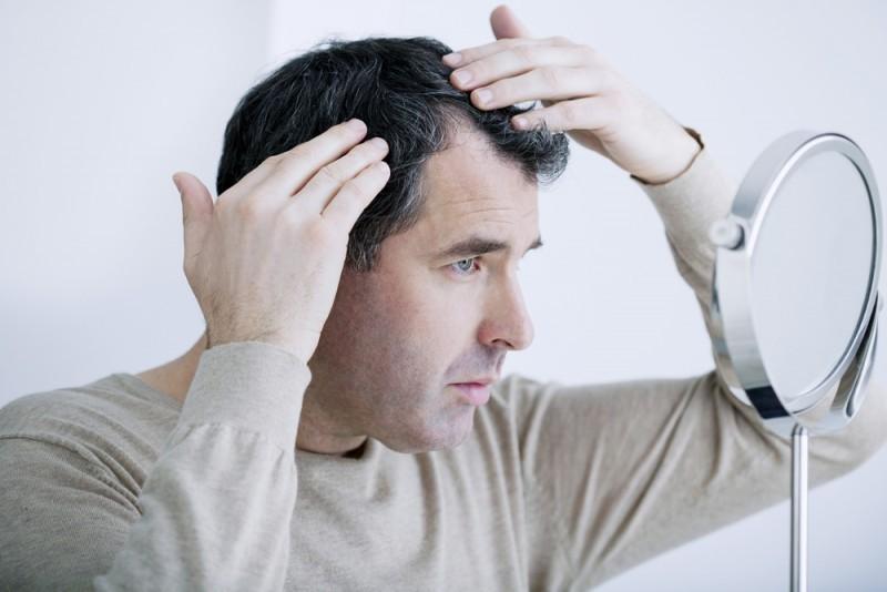 Jak radzić sobie znadmiernym wypadaniem włosów u mężczyzn?